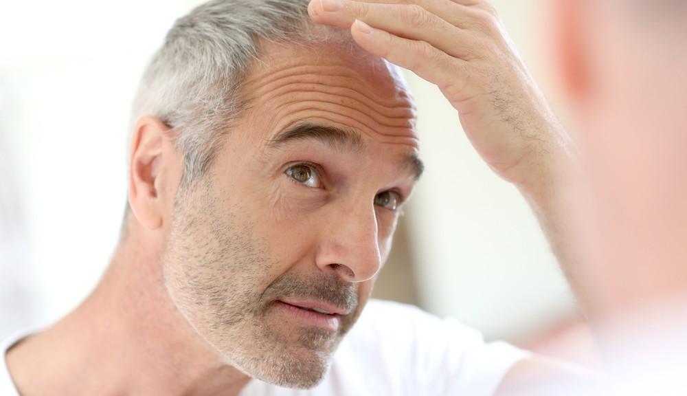 Prevent Hair Loss with These Amazing Tips